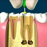 endodoncia y sus beneficios