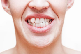 Porque Tenemos Los Dientes Chuecos Odontologists
